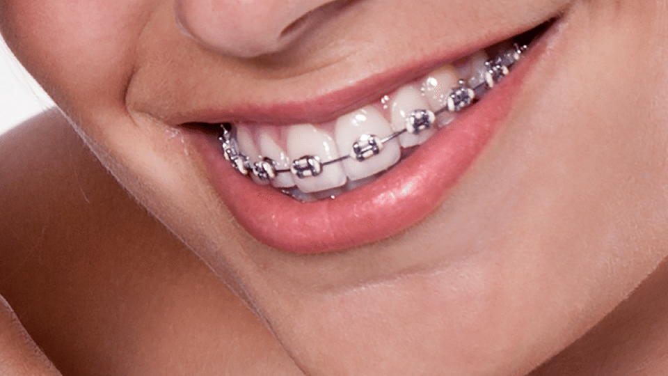 Braces | Kansas City | Weber Orthodontics