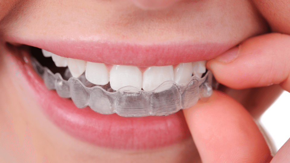 Invisalign - Kansas City - Weber Orthodontics