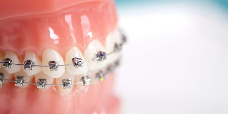 What's the difference between an orthodontist and a dentist? - Kansas City - Weber Orthodontics