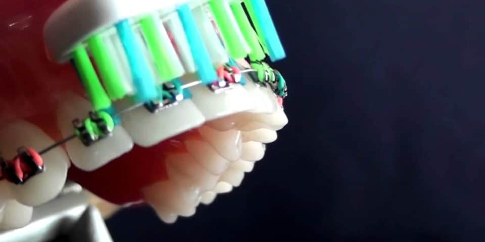 Five Ways to Clean Braces - Kansas City - Weber Orthodontics