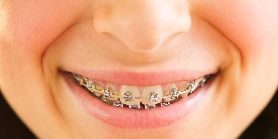 What to do With a Broken Braces Bracket - Kansas City - Weber Orthodontics