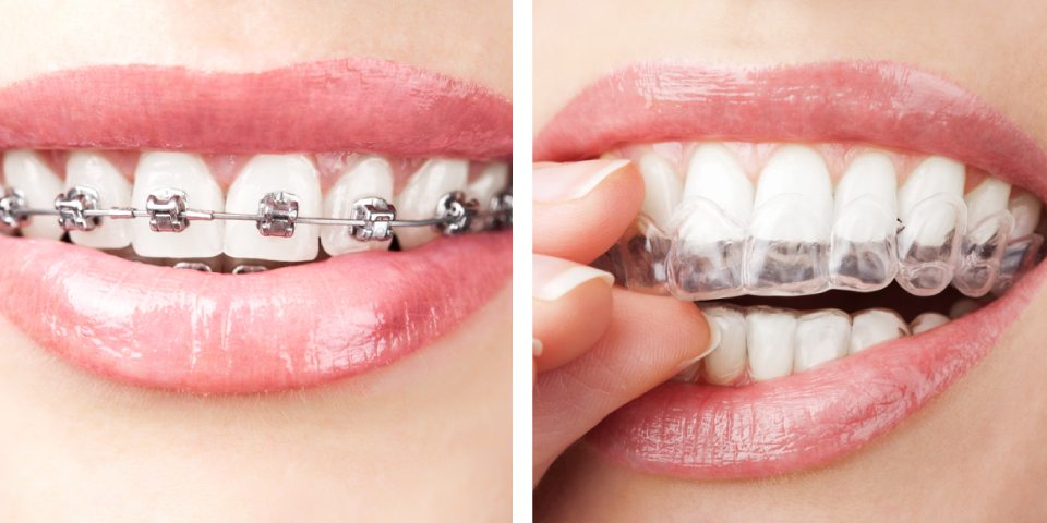 An Alternative to Conventional Braces - Kansas City - Weber Orthodontics