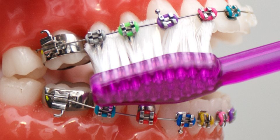 How to Avoid Orthodontic Emergencies - Kansas City - Weber Orthodontics