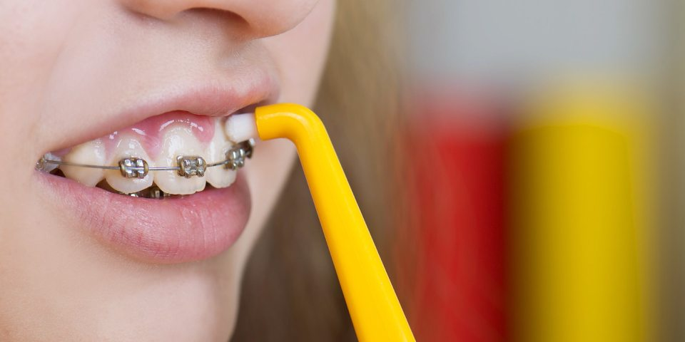 10 Ways to Keep Your Braces Clean - Kansas City - Weber Orthodontics