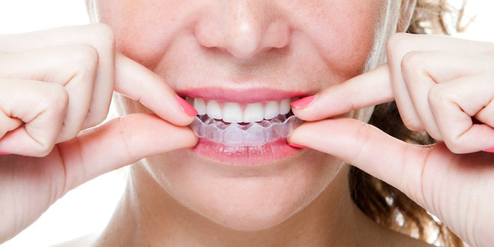 Does Invisalign Work - Weber Orthodontics