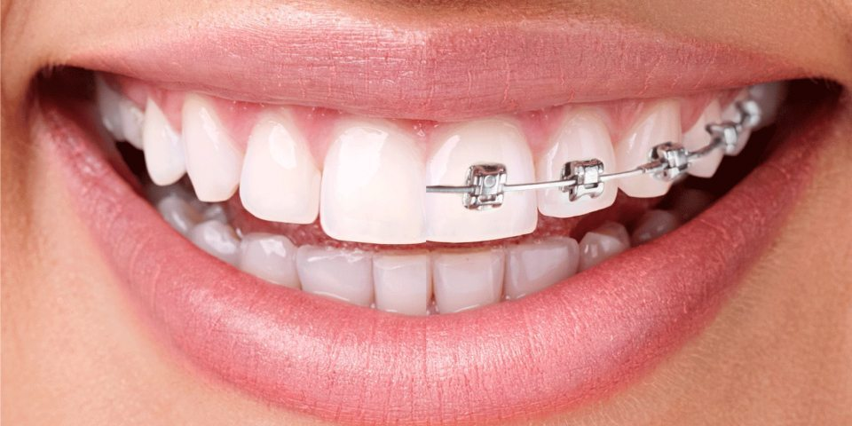 Braces Or Invisalign - Kansas City - Weber Orthodontics