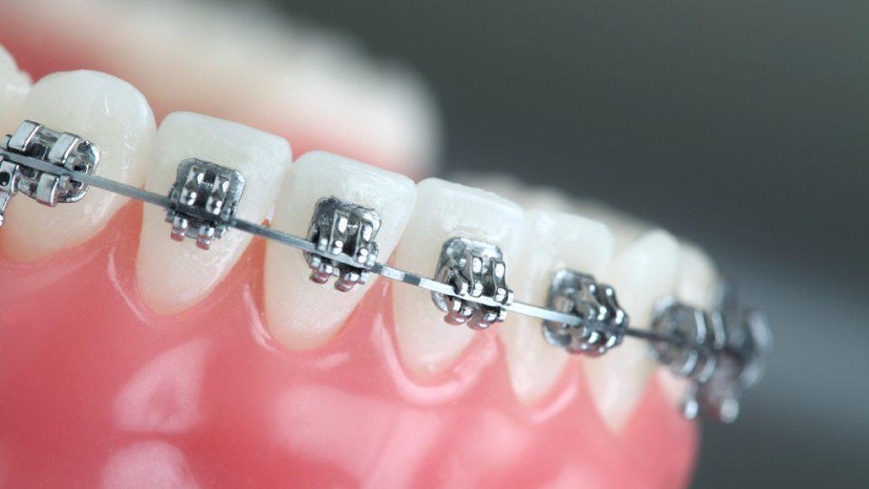 Five Problems That Weber Orthodontics can Fix - Weber Orthodontics
