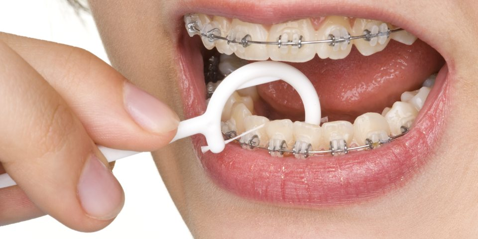Oral Hygiene With Braces - Kansas City - Weber Orthodontics