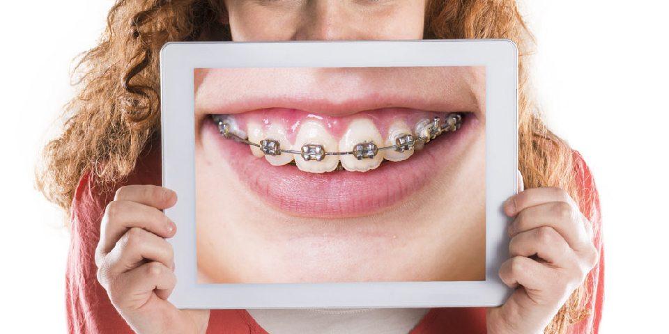 Orthodontic Braces Information - Kansas City - Weber Orthodontics