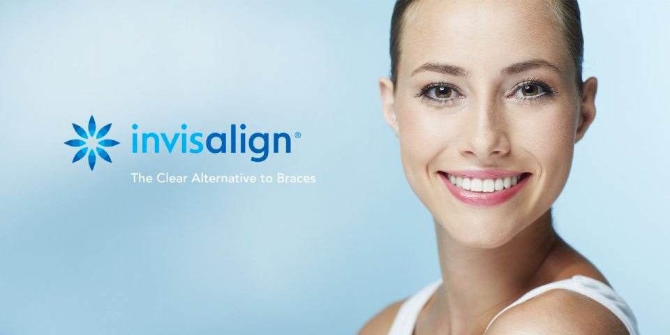 factsaboutinvisalign-featuredimage