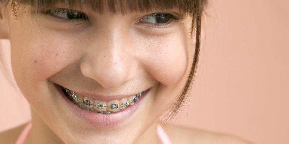 What To Ask An Orthodontist When Considering Braces - Kansas City - Weber Orthodontics