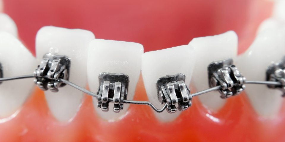 Learn what your Orthodontist is Saying Featured Image - Weber Orthodontics