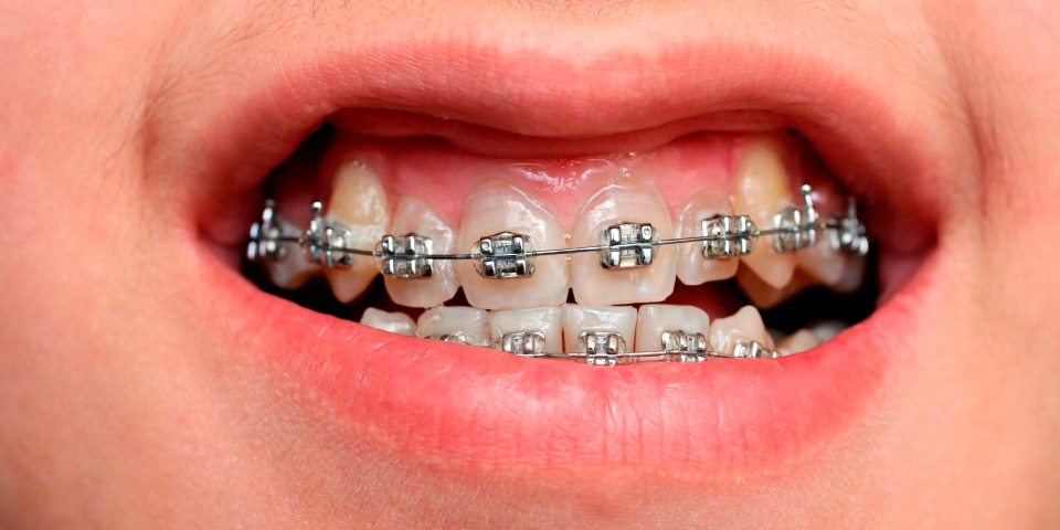How to Prevent Damage to your Braces Featured Image - Weber Orthodontics