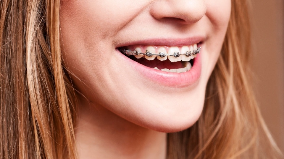 Help for the First Few Days of Braces - Weber Orthodontics