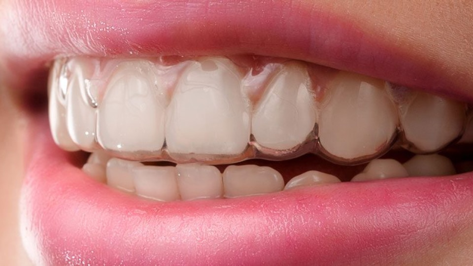 Straighten Your Teeth Without Braces - Weber Orthodontics