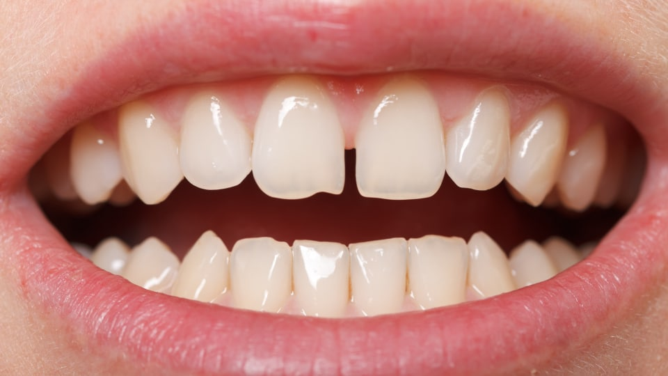 Will I Need Braces for a New Gap in My Teeth Featured Image - Weber Orthodontics