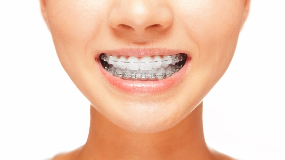 Answers to Questions about Orthodontics Featured Image - Weber Orthodontics