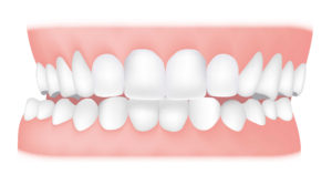 What is Malocclusion Featured Image - Weber Orthodontics