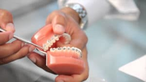 Why are there Wires in Braces Featured Image - Weber Orthodontics