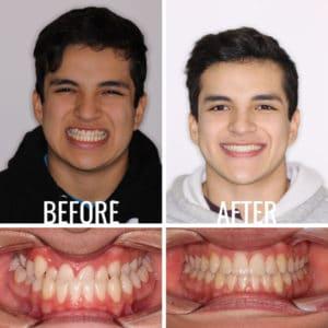 Before After Image Guerra Albert - Weber Orthodontics