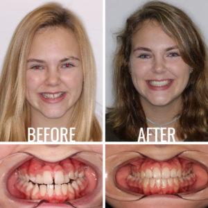 Before After Image Leffler Katja - Weber Orthodontics
