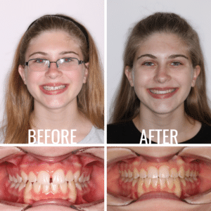 Before After Image Tiedt Brooke - Weber Orthodontics