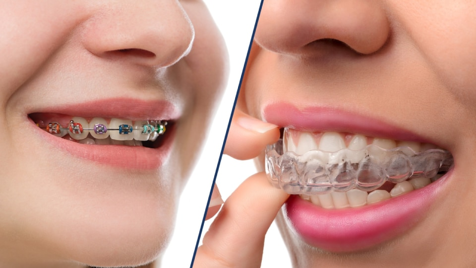 Need An Orthodontist In Kansas City Featured Image - Weber Orthodontics