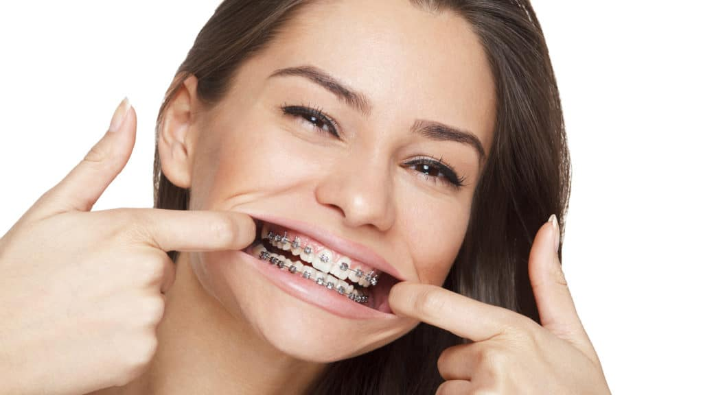 Braces for all Ages Featured Image - Weber Orthodontics