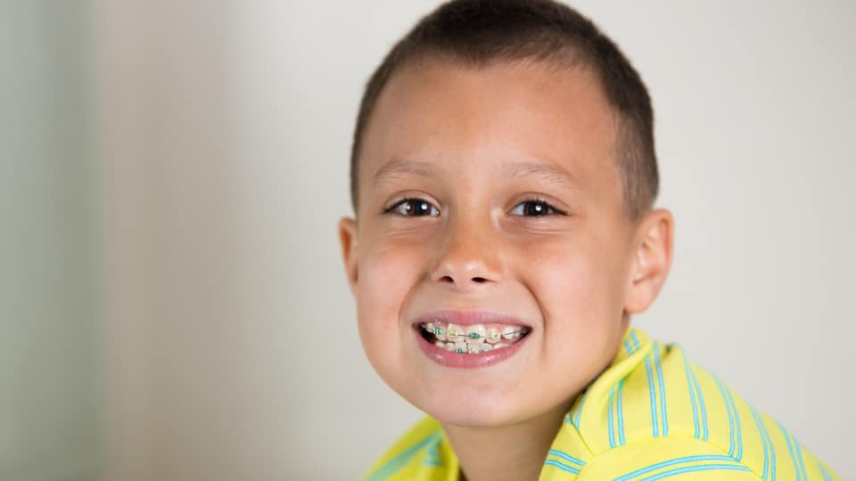 The Benefits Of Early Orthodontics Featured Image - Weber Orthodontics