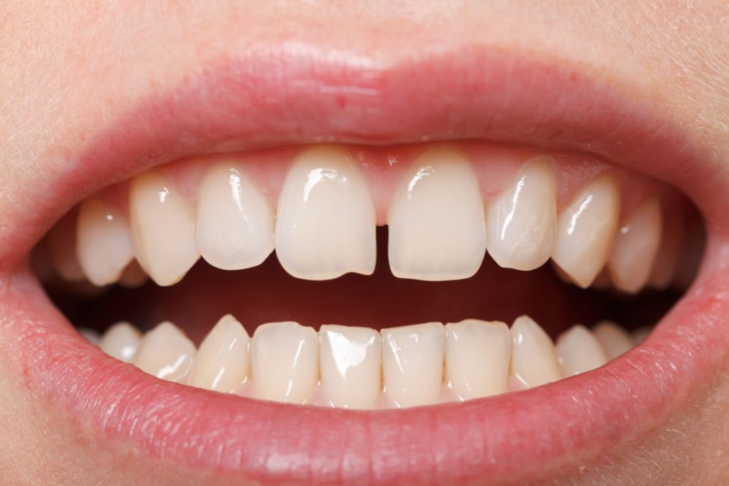 Will I Need Braces If I'm Starting To See A Gap In My Teeth Featured Image - Weber Orthodontics