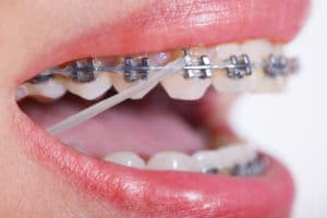 Should You Wear Your Rubber Bands All The Time Featured Image - Weber Orthodontics