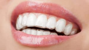 Reasons To Choose Clear Aligners Over Traditional Braces Featured Image - Weber Orthodontics