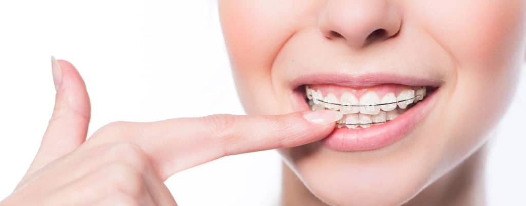 Can I Have My Braces Off Earlier Than Expected Featured Image - Weber Orthodontics