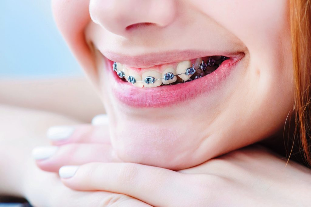 How to Avoid Delays During Your Orthodontic Treatment Featured Image - Weber Orthodontics
