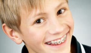 Things To Say To Your Kids After They Get Braces Featured Image - Weber Orthodontics