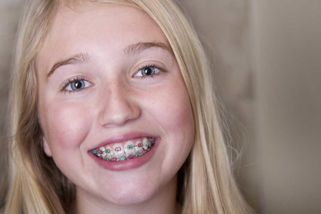 What To Do About Buck Teeth Featured Image - Weber Orthodontics