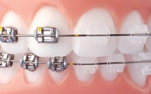 Metal vs Clear Braces Featured Image - Weber Orthodontics