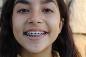 Should I Get Braces Featured Image - Weber Orthodontics