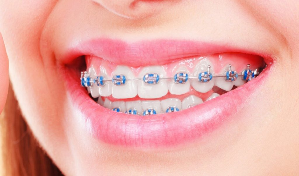 What To Do If My Braces Bracket Comes Off Featured Image - Weber Orthodontics