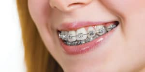 What You Need To Know About Braces Removal Featured Image - Weber Orthodontics