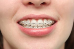 Why Your Braces Need Adjusting Featured Image - Weber Orthodontics