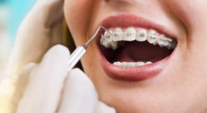 Why Orthodontic Treatment Is Important - Weber Orthodontics