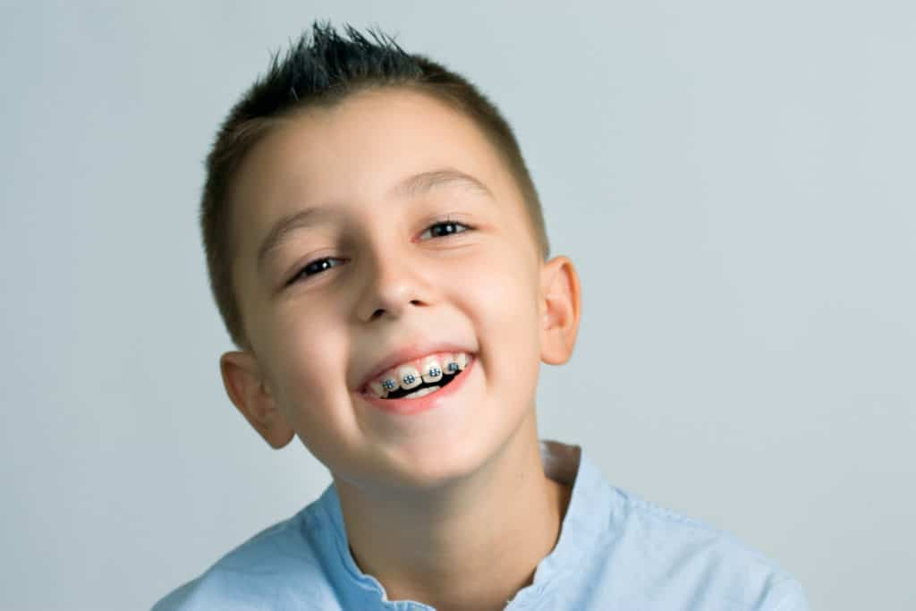 "When Are ""Early Braces"" Needed Featured Image - Weber Orthodontics"