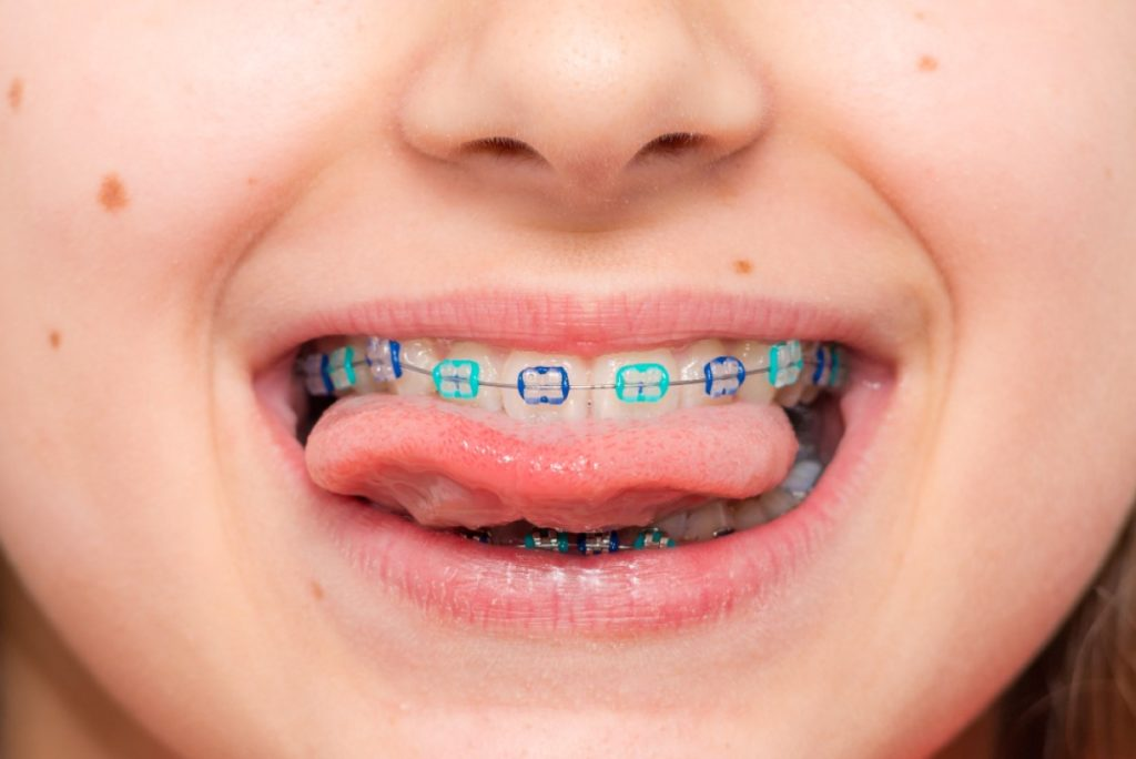 How To Get Your Kids Excited About Braces Featured Image - Weber Orthodontics