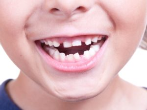 Why Aren't My Child's Permanent Teeth Coming In Featured Image - Weber Orthodontics