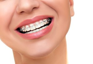 More Adults Are Getting Braces Featured Image - Weber Orthodontics