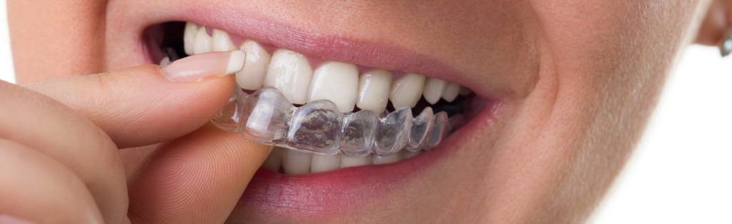 Tips For Your Kansas City Invisalign Treatment Featured Image - Weber Orthodontics