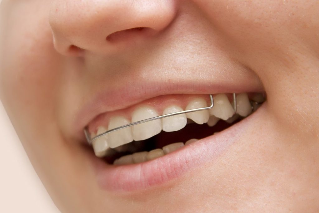 I Just Got My Braces Off… What Happens Now Featured Image - Weber Orthodontics